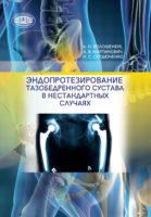 Эндопротезирование тазобедренного сустава в нестандартных случаях